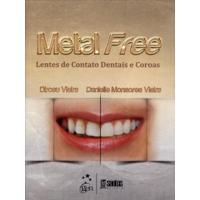 Metal Free. Lentes De Contato E Coroas